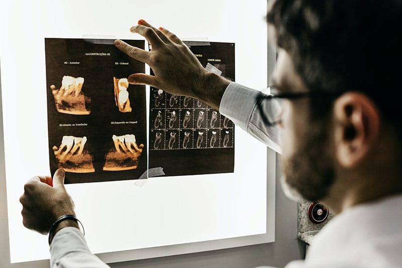 children chest x ray