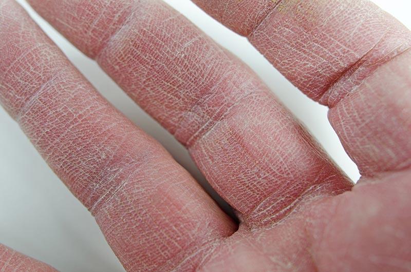 low humidity skin problem